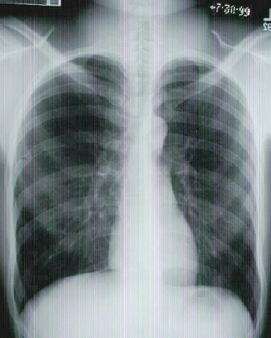 Normal Posterior to Anterior (PA) Chest X-ray