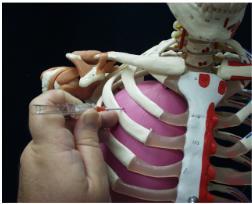 NeedleaTensionPneumothorax